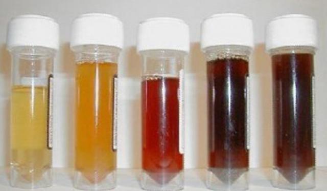 warna-urin