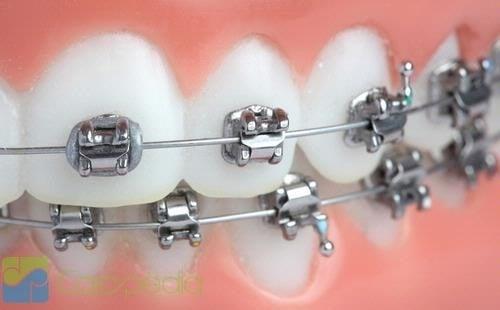 Dampak Negatif Memakai Kawat Gigi
