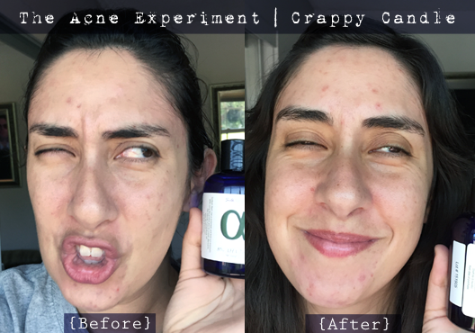Silk Naturals 8% AHA Toner Before & After - The Acne Experiment