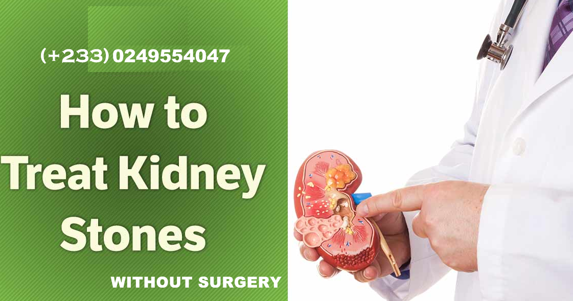 symptoms causes and treatment of kidney stones But if a larger stone travels down a ureter, it can create a blockage that causes pain and a variety of other symptoms what causes kidney stones  kidney stone treatment update.