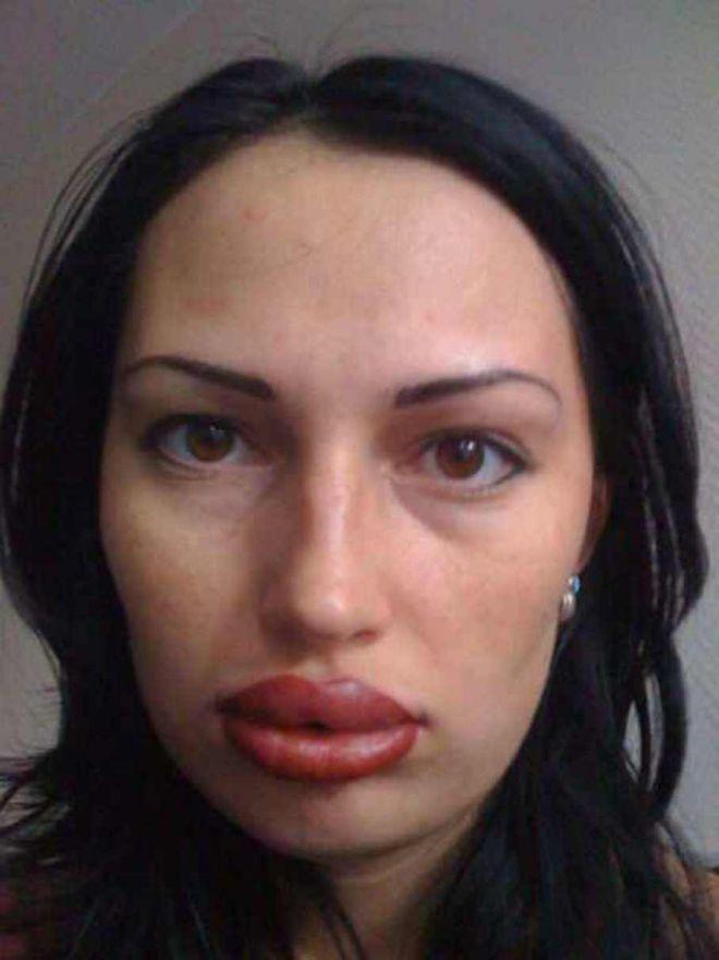10 неудачных операций по увеличению губ