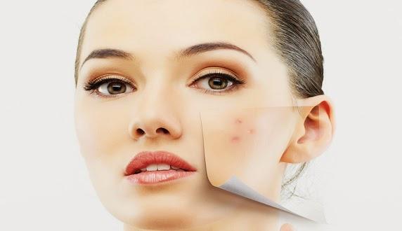 Penyebab dan Cara Merawat Kulit Wajah Berminyak Berjerawat Penyebab dan Cara Merawat Kulit Wajah Berminyak Berjerawat