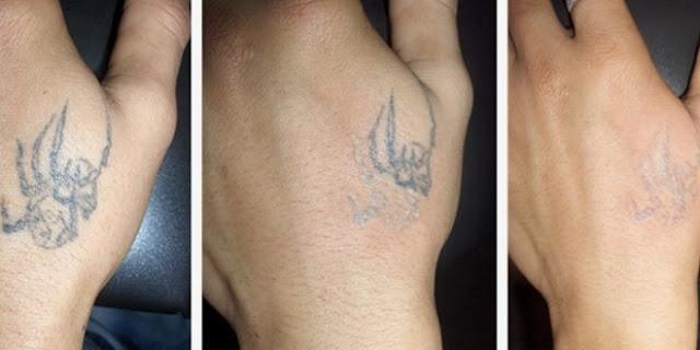 Remover-Tatuagem-Sem-Laser