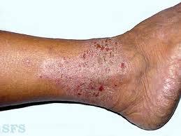 Cara mengobati eksim kering di kaki dan betis