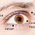 Must Read! 8 HEALTH CONDITIONS SEEN ON YOUR EYES
