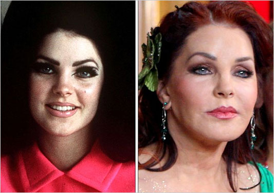 Celebrity Plastic Surgery Before And After Funnymadworld