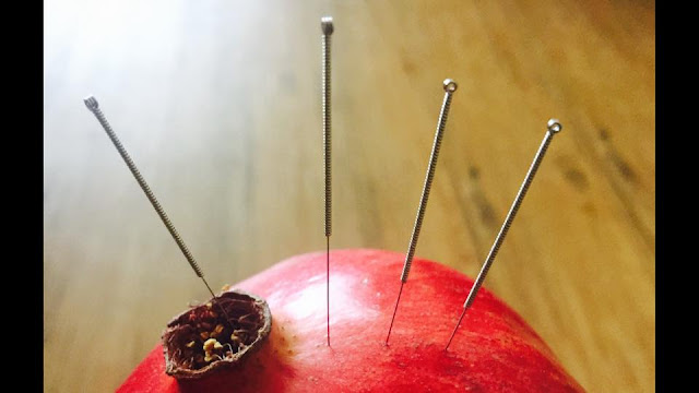 The Best Acupuncture Treatment in NYC