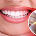 How To Whiten Teeth At Home With Banana