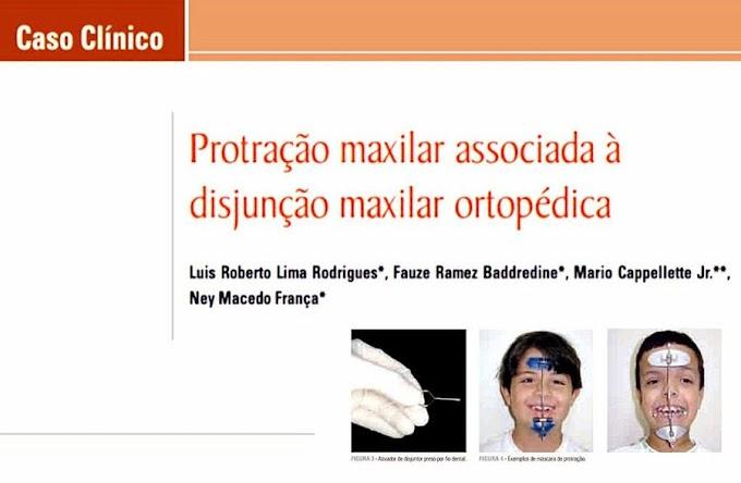 PDF: Protração maxilar associada à disjunção maxilar ortopédica