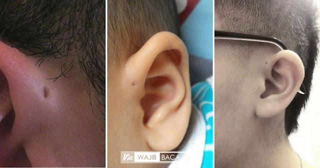 Bukan Akibat dari Ibu Memaku Saat Mengandung, ini Fakta Lubang Kecil Didekat Telinga