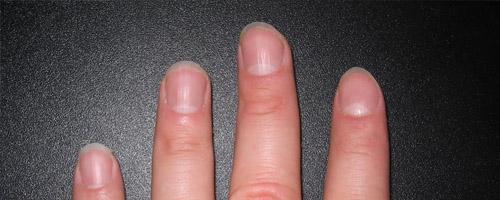 10 funções corporais que continuam mesmo depois da morte - Crescimento de unhas e cabelos.jpg