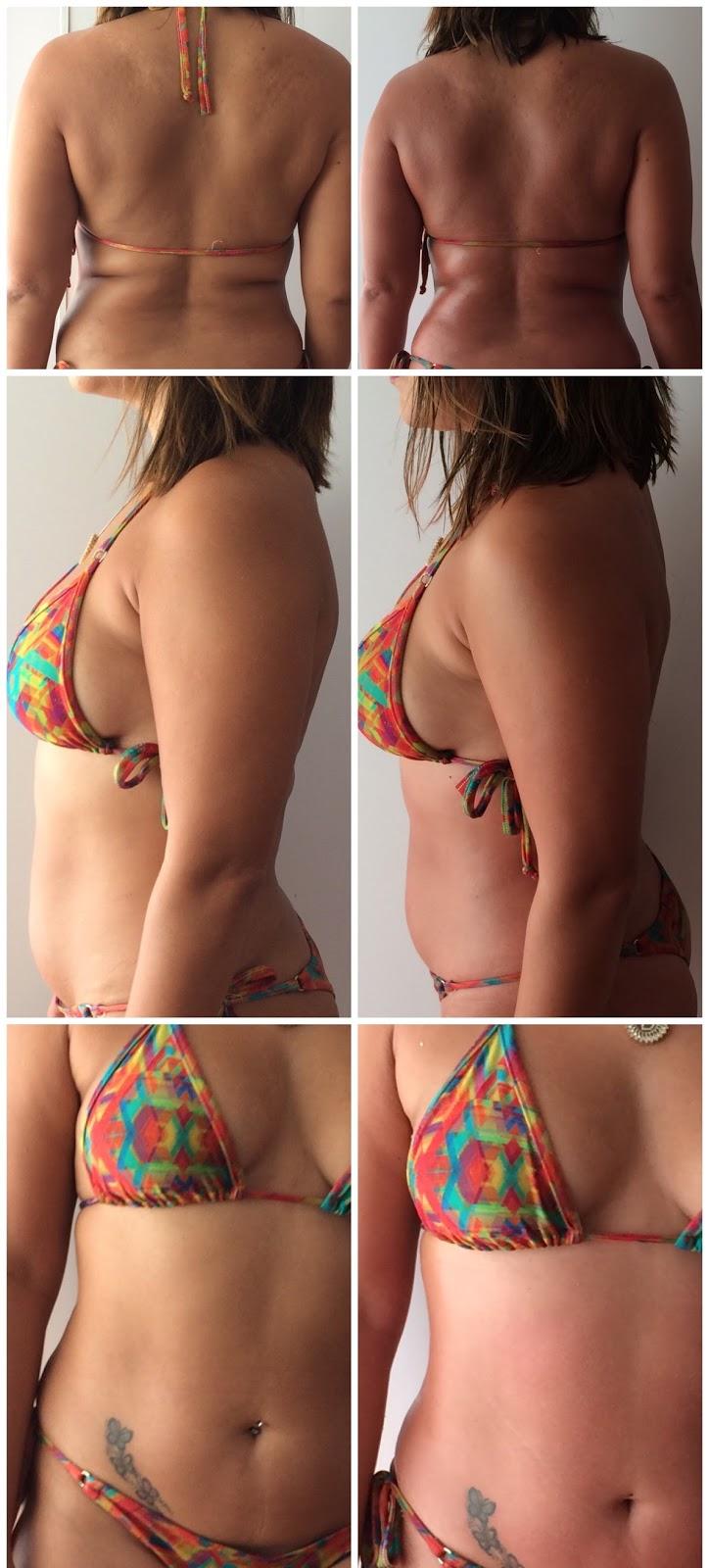 Meu antes e depois da sessão Magic Touch Detox na Expose