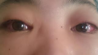 Konjungtivitis sakit mata dan pengobatannya