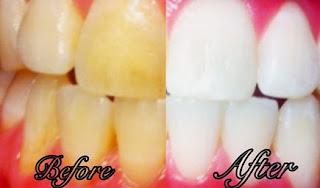 Cara Memutihkan Gigi Dalam 2 Menit