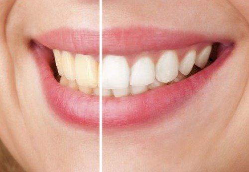 methode blanchiment des dents