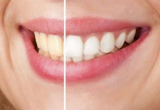 5 Méthodes naturelles pour blanchir les dents en quelques minutes