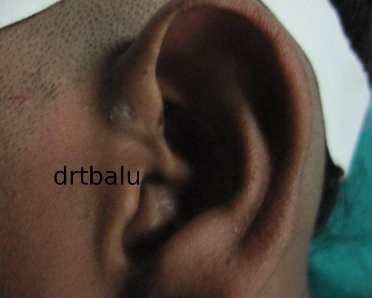drtbalu's otolaryngology resources: Preauricular sinus