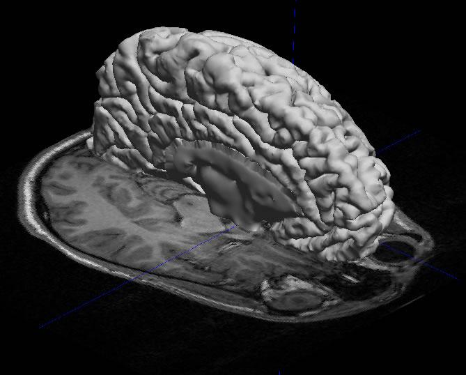 brain mri scan 3d - photo #9