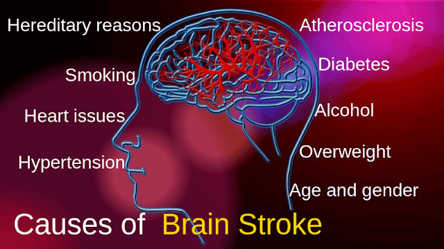 Causes of  Brain Stroke