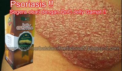 Obat Penghilang Psoriasis Plak Tradisional, 100% Terbukti Menyembuhkan Psoriasis Plak