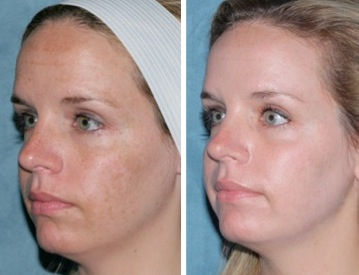 For that Facial resurfacing before and after something is