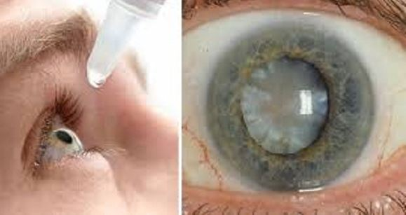 Life-Changing News: Eye Drops That Can Cure Cataracts Have Been Discovered By Scientists!