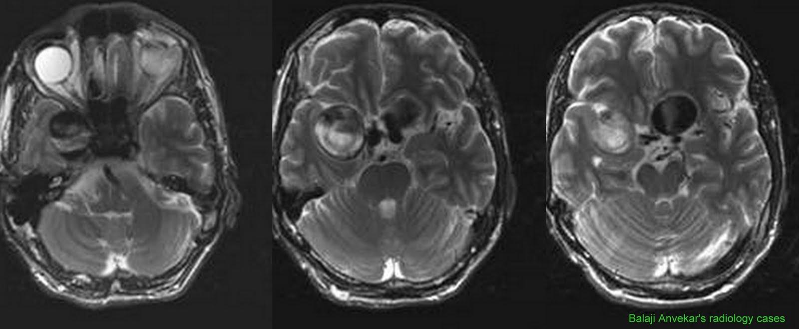 Dr Balaji Anvekar S Neuroradiology Cases Bilateral Ica