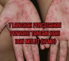 7 Langkah Pencegahan Penyakit Tangan Kaki dan Mulut (HFMD) Untuk Kanak-kanak.