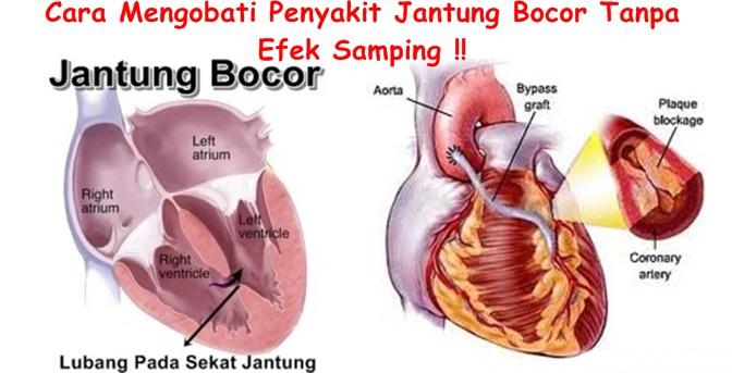 Obat Tradisional Tuntaskan Jantung Bocor