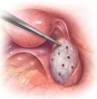 Ovarium Drilling (LOD)