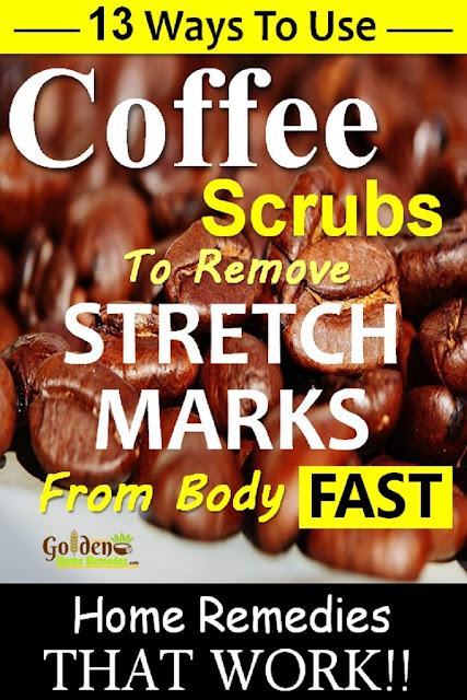 Coffee Scrub for stretch marks, how to lighten stretch marks fast with Coffee Scrub, how to get rid of stretch marks, home remedies for stretch marks, remove stretch marks, stretch marks treatment,