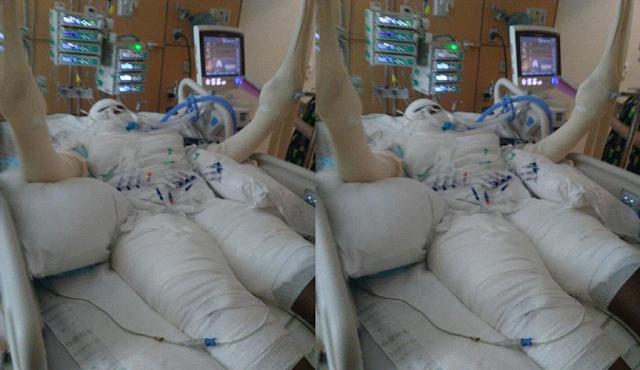Terpengaruh Dengan Aksi Di Sosmed, Pria Ini Mencoba Bakar Diri Dan Berakhir Dirumah Sakit
