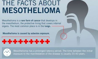 Important Information About Mesothelioma
