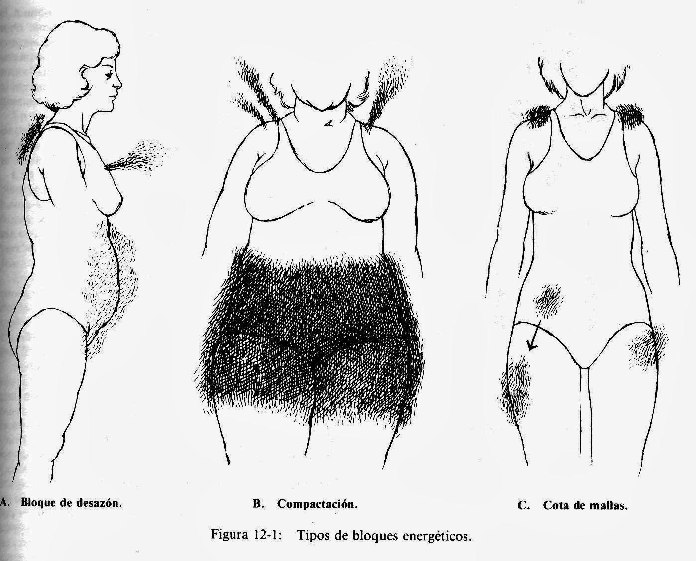 Barbara Brennan-3 figuras femeninas indicando bloques de desazón, compactación y cota de mallas.
