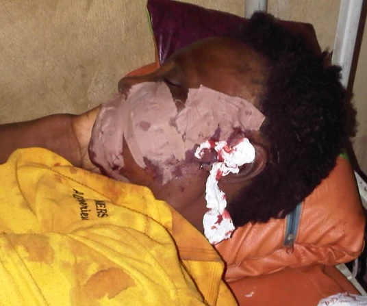 Notorious Arm Bandits On Rampage In Lagos; Rapes Many, Loot Properties, Many injured, See Photo