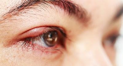 5 Bahan Alami untuk Atasi Mata Bintitan