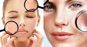 maiores causas de pele oleosa