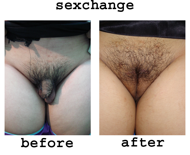 sex change operation post op photos