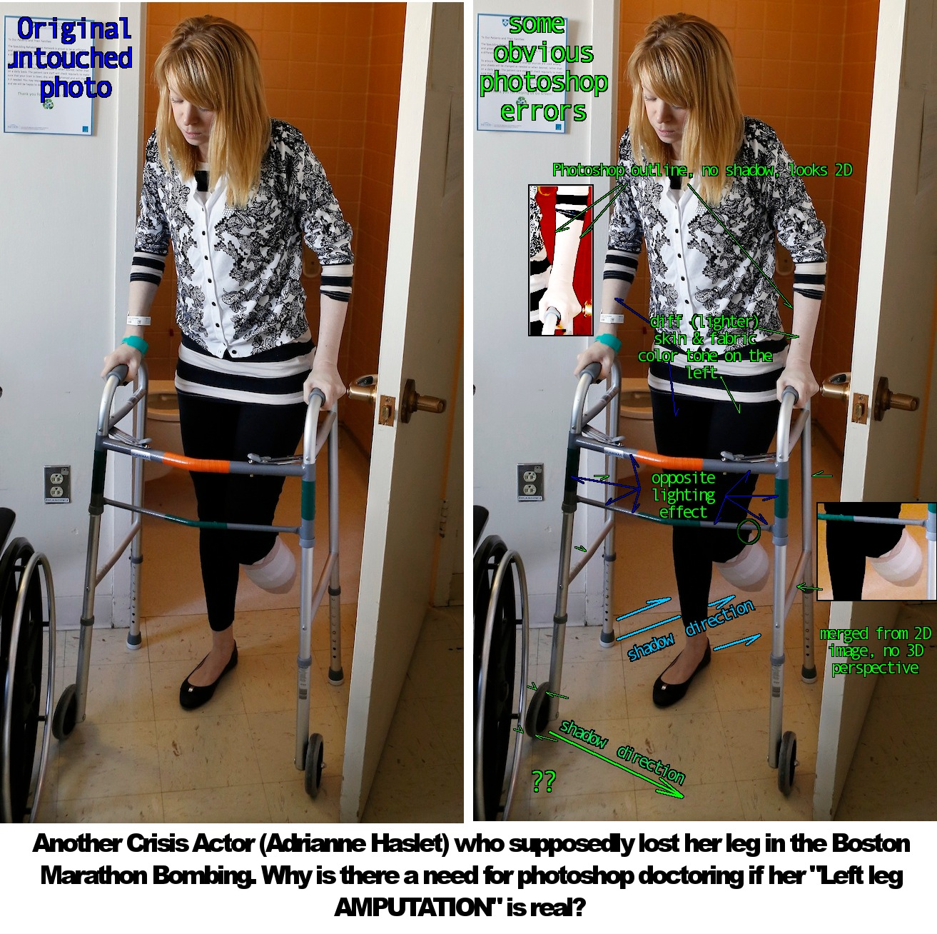 Zionist Made2Happen Disasters: Another Fake Leg Amputee