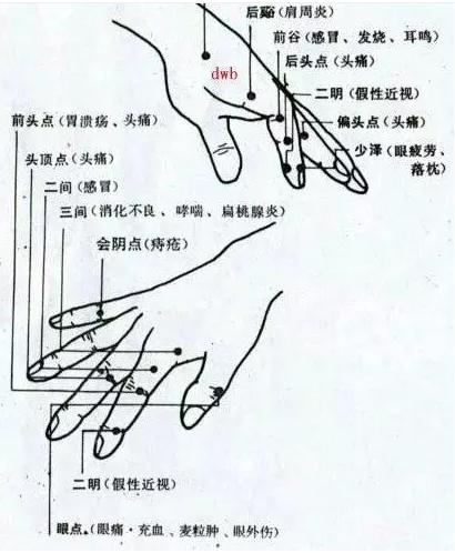 手掌穴道 - 頭痛穴道按摩穴位