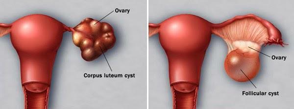 cyst, jenis cyst, sista ovari, ovary cyst, dermoid cyst, luteal cyst, endometriosis,