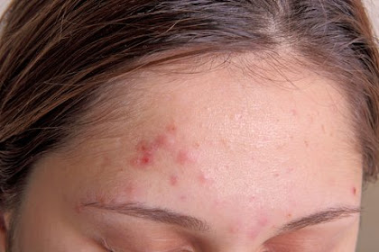 Acne Vulgaris: Causes and Treatment