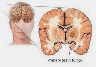 Brain Tumor Treatment Chennai