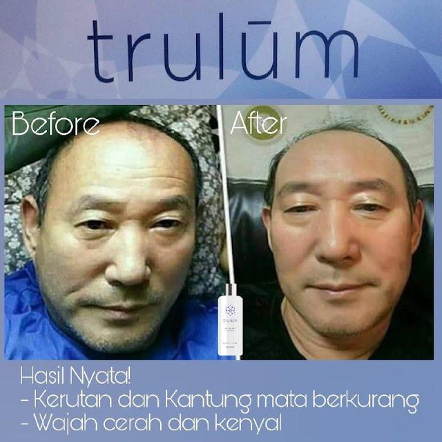 Jual Serum Penghilang Keriput Trulum Skincare Tanete Riattang Bone