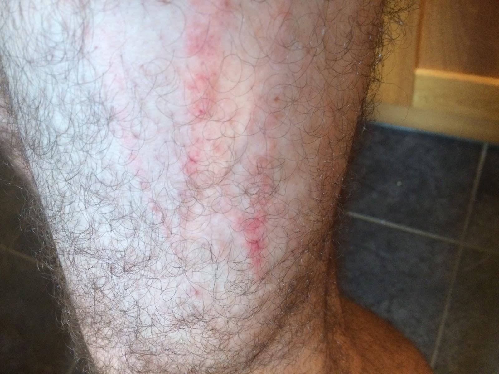 swisslet: scratch my leg
