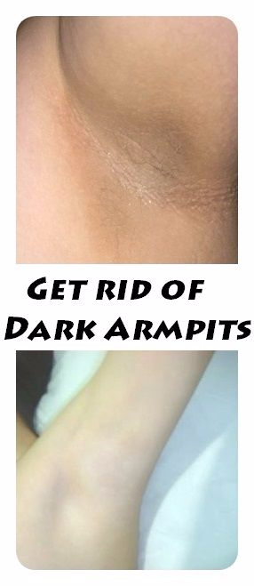 Get rid of dark armpits