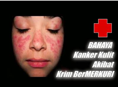 Bahaya Memakai Cream Pemutih Palsu