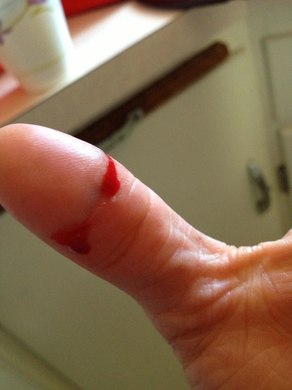 blood cut images