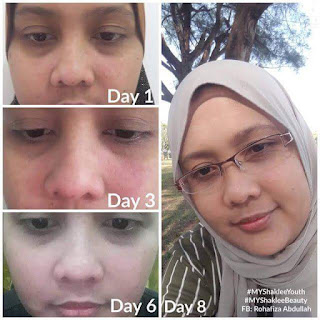 Youth skincare, twb, kursus spa murah, kursus mobile spa, ee beauty spa, spa murah