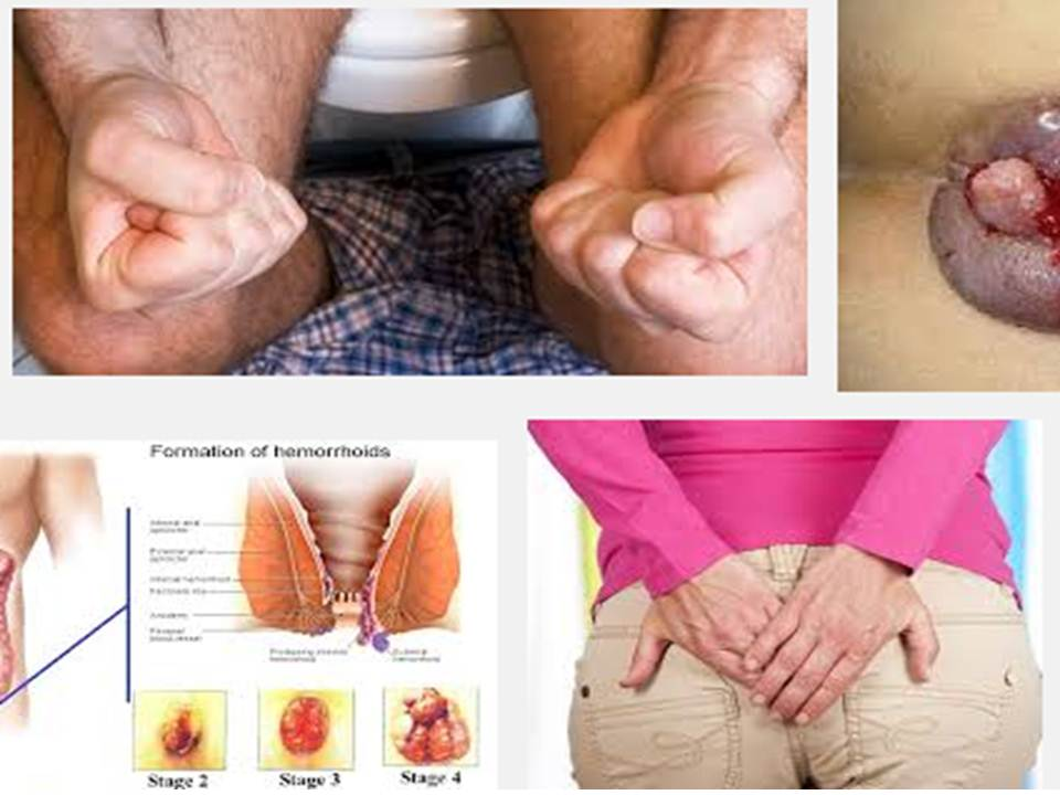 The most common cause of external hemorrhoids is repeated straining while having a bowel movement External hemorrhoids are usually found beneath the skin